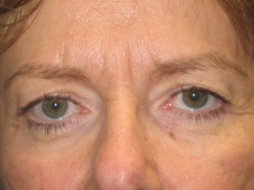 Eyelid Surgery Minneapolis St Paul MN